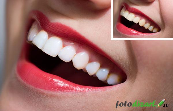 отбеливание зубов в фотошопе 2